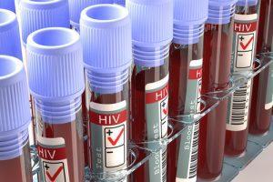 Exército deve aposentar militar com HIV mesmo que não apresente sintomas