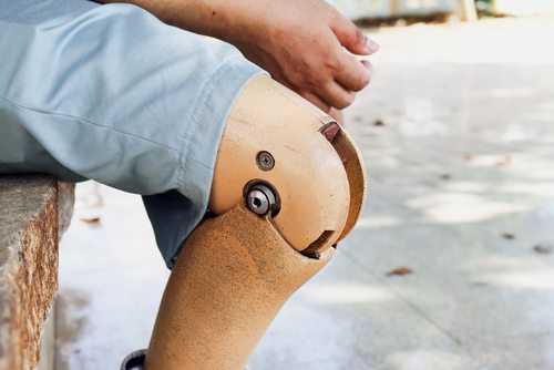 HCPA é condenado a indenizar paciente que teve perna amputada