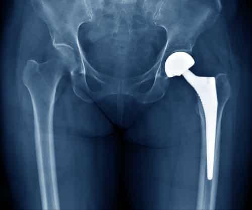 Candidato com prótese no quadril que concorreu como deficiente perde vaga