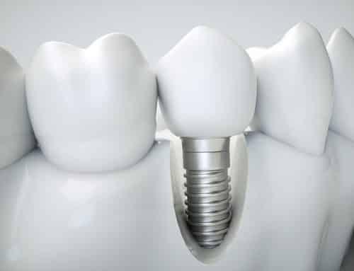 Impedida de entrar em banco com prótese dentária, cliente será indenizada em 5 mil