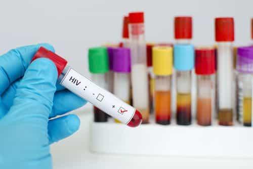Empregado portador de HIV recebe indenização por dispensa discriminatória
