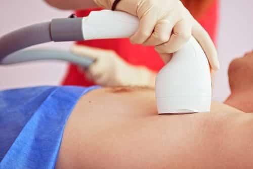 Transexual pode realizar depilação a laser na rede pública de saúde
