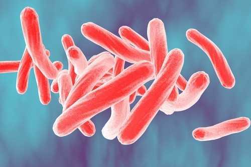 TST reconhece discriminação em dispensa de executiva com tuberculose