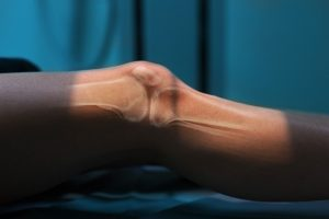 Lesão no joelho
